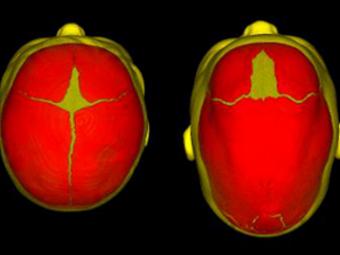 Найдены генетические причины врожденной деформации черепа
