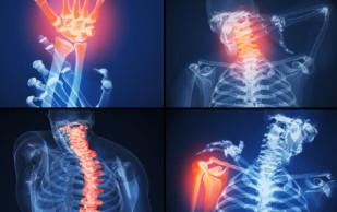Стоматология против ревматоидного артрита