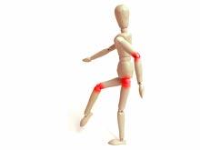 Изобретатели разработали новую генную терапию против артрита