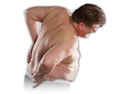 Ожирение увеличивает риск развития остеопороза