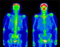 Распространенные химические вещества могут привести к остеоартриту