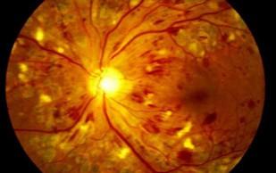 Разработан новый метод лечения ретинопатии с использованием альтернативного ресурса стволовых клеток