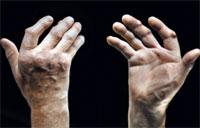 Найдены биологические методы лечения ревматоидного артрита, не связанные с повышенным риском заболевания раком