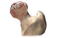 Асептический некроз головки бедренной кости: причины и симптомы