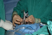 Утверждено клиническое испытание для лечения рассеянного склероза инъекциями стволовых клеток в позвоночник