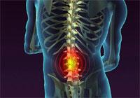 Вот почему опасно игнорировать боли в спине
