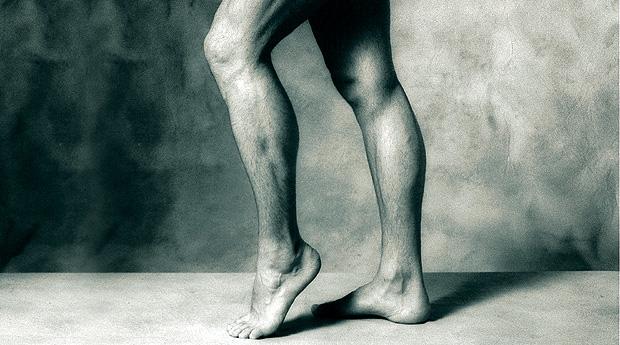 Облитерирующий эндартериит. Берегите ноги смолоду