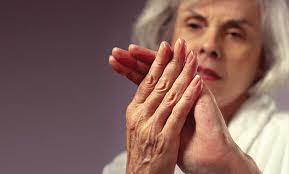 10 вопросов об артрите