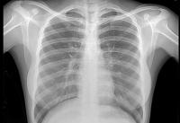 Томскими учеными изобретен безопасный рентген
