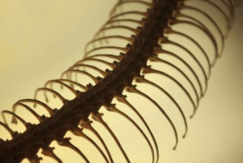 Тонкая кость