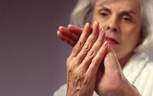 10 мифов об артрите