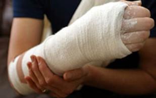 Создана «шпаклевка» для лечения переломов