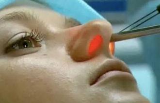 Лазерное удаление полипов в носу