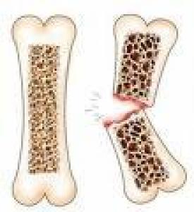 Остеопороз и переломы повышают риск преждевременной смерти среди пожилых людей