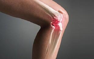 Синовит: симптомы, причины, прогноз и методы лечения. Синовит коленного сустава и др.