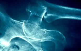 Остеопороз. Факторы риска и профилактика остеопороза