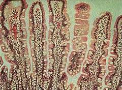 Ученые изобрели новый способ диагностики целиакии