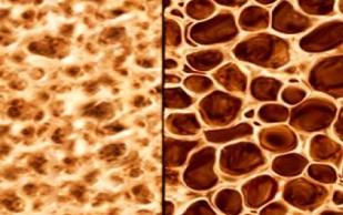 Остеопороз: контролируйте факторы риска