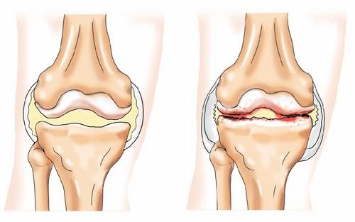 псориатический артрит коленного сустава фото