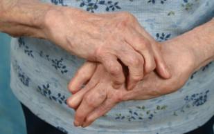 Артрит – причины и симптомы появления