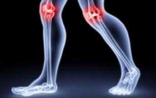 Профилактика прогрессирования остеоартроза