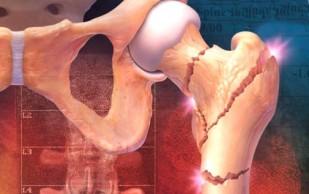 Бронхиальная астма как самостоятельный фактор риска развития остеопороза