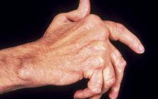 Симптомы и лечение артрита: возьмите на заметку