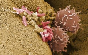 Щелочная фосфатаза подавляет рост полезных бактерий в кишечнике