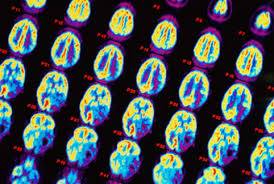 В головном мозге отдельные области взаимосвязаны друг с другом