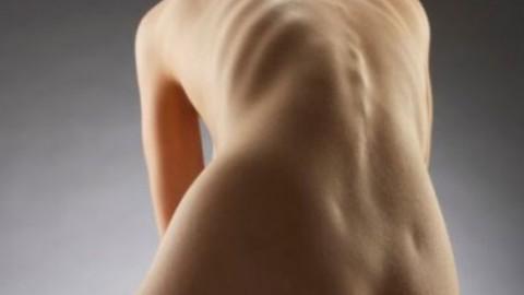 Остеопороз легче лечить, если раньше выявить