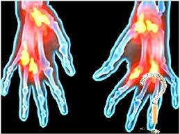 Ревматоидный артрит поддается лечению, убеждены исследователи