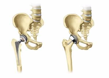 Восстановление после операции эндопротезирования тазобедренного сустав