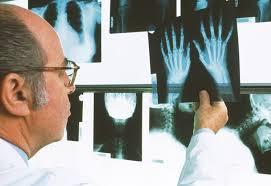 Новые возможности лечения ревматоидного артрита