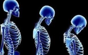 Merck опубликовала убедительные результаты КИ нового средства против остеопороза