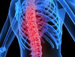 Серьезные лекарства – серьезный риск остеопороза