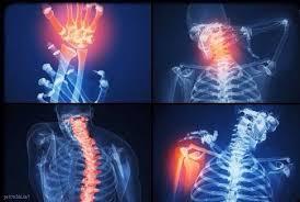 Обнаружен рецептор, способствующий развитию ревматоидного артрита