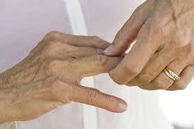 Артрит: это больно и некрасиво