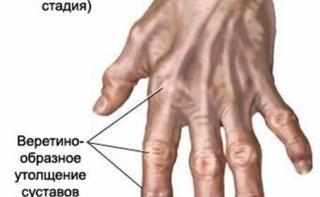 Туберкулезный артрит