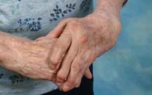 Артрит (заболевание суставов)