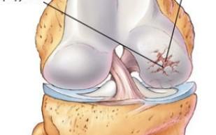 Остеопороз и артрит можно побороть при помощи имплантов