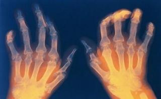 Обнаружен механизм взаимосвязи пародонтита и ревматоидного артрита