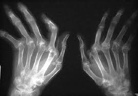 Игибиторы ФНО помогают справиться с усталостью при ревматоидном артрите