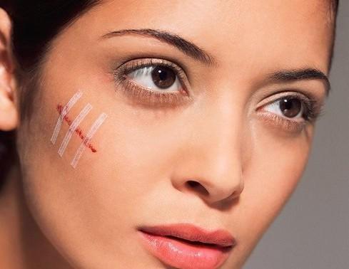 Как избавиться от шрамов и рубцов?