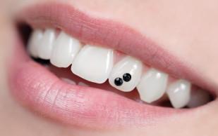 Украшаем зубки скайсами