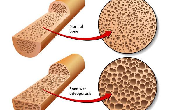 Малоподвижная жизнь сделала хрупкими кости человека