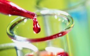 Старение поможет перебороть молодая кровь, — исследование