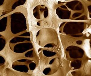 12 рекомендаций, как избежать остеопороза