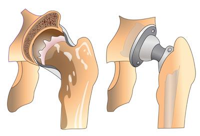 Реабилитационный период после эндопротезирования тазобедренного сустава