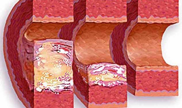 Избыток холестерина в еде начинает развитие заболеваний кишечника