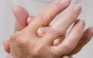 Врачи назвали главные причины возникновения артрита